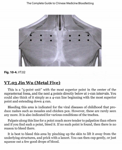 2021-06-20 17_15_25-Chinese Medicine Bloodletting.pdf and 6 more pages – Profile 1 – Microsoft Edge