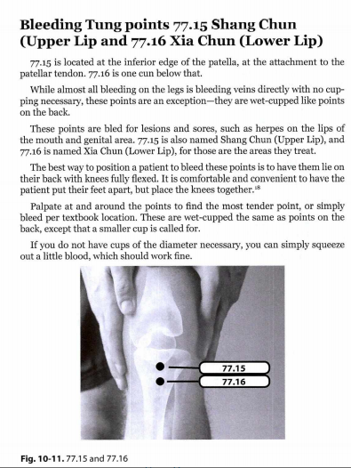 2021-06-20 17_16_07-Chinese Medicine Bloodletting.pdf and 6 more pages – Profile 1 – Microsoft Edge