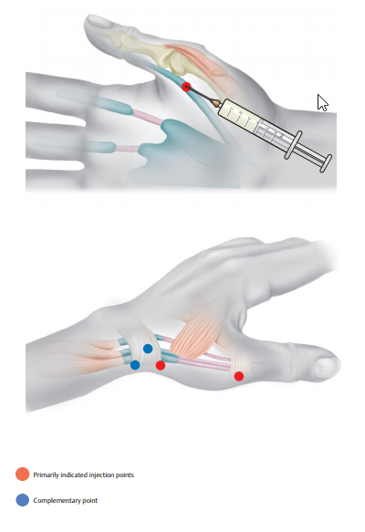 2021-06-15 12_37_17-Altas of injection therapy.pdf and 5 more pages – Profile 1 – Microsoft Edge