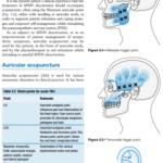 2021-08-20 23_55_44-ebooksclub.org__Acupuncture_in_Manual_Therapy.pdf – Profile 1 – Microsoft Edge