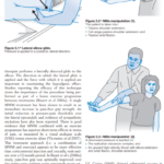 2021-08-20 23_57_47-ebooksclub.org__Acupuncture_in_Manual_Therapy.pdf – Profile 1 – Microsoft Edge